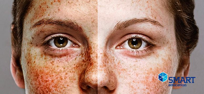Beneficios y efectos dañinos del sol